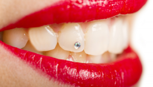 Tooth-Jewelry
